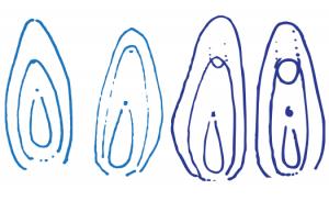 tipuri de clitoris